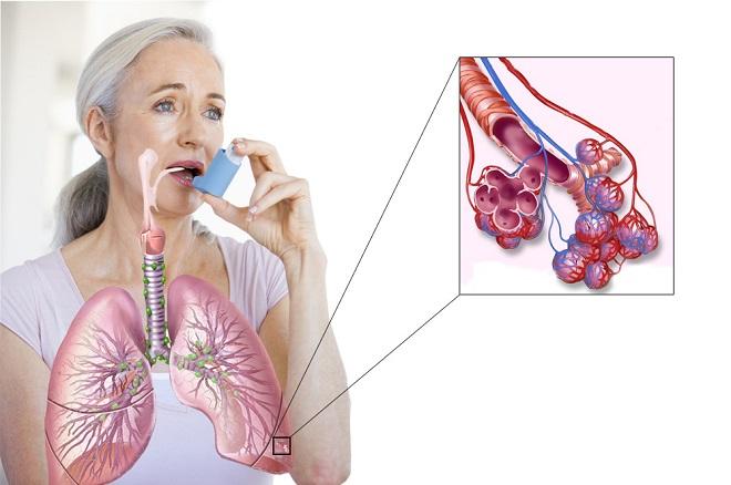 Оформление инвалидности с бронхиальной астмой