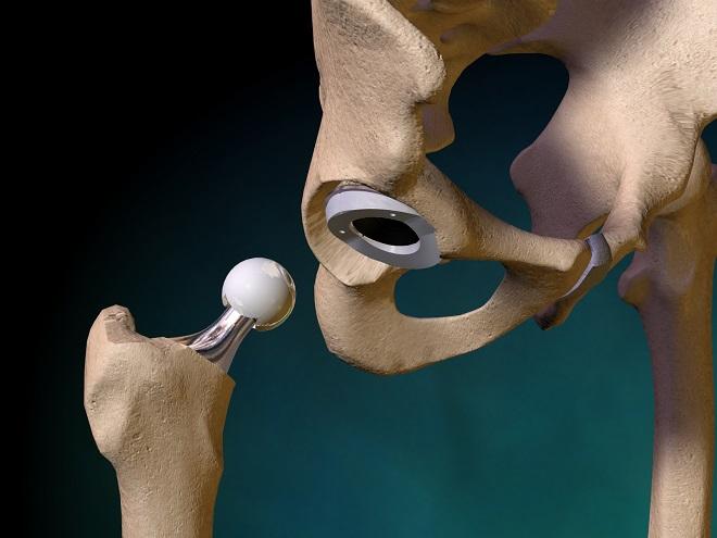Дают ли инвалидность после эндопротезирования?